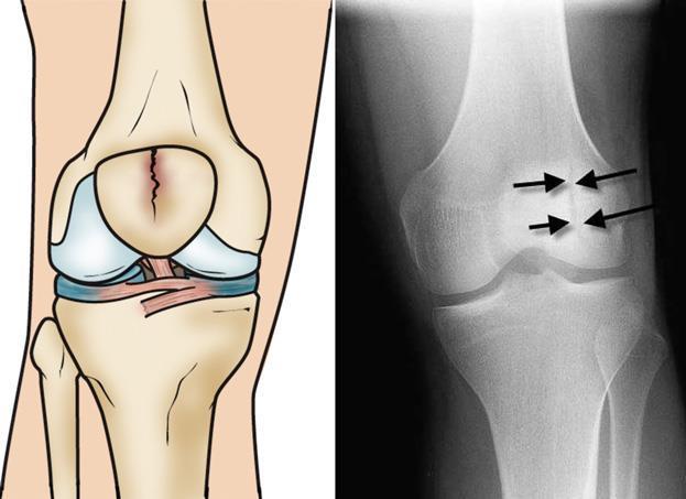 פיזיותרפיה לברך - שבר בברך